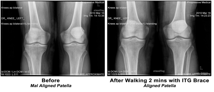 e6681ed192 In The Groove Patellofemoral Knee Brace: How Does It Work